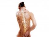 Программа профилактики остеопороза